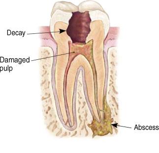 San Diego Dental Studio - Can my Dead Tooth be Saved? - San